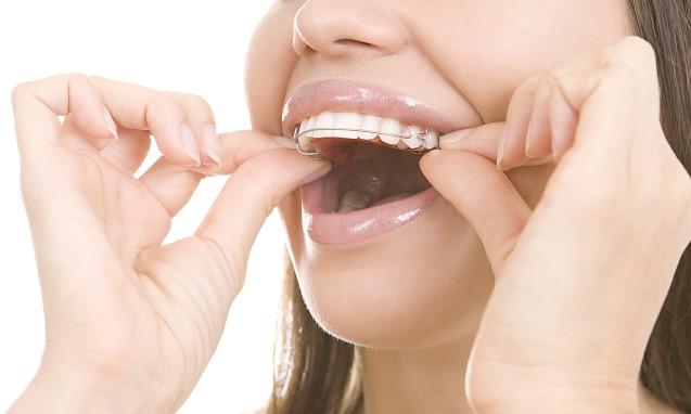 יישור שיניים למבוגרים כל מה שחשוב לדעת