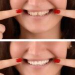 יישור שיניים לפני ואחרי כל מה שרציתם לדעת