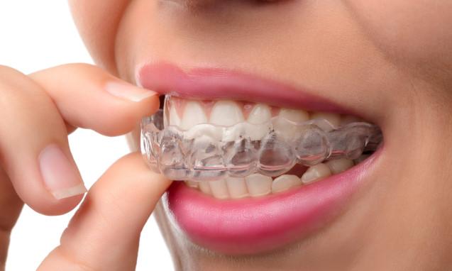 יישור שיניים מהיר כל מה שרציתם לדעת