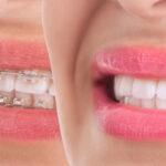יישור שיניים שקוף כל מה שרציתם לדעת